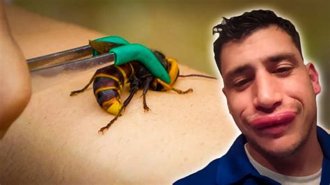 Stories of Stings from Bees, Wasps, Murder Hornets
