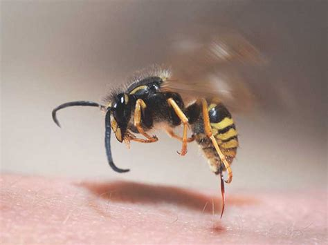 Yellow Jacket Stings: Symptoms, Treatment, and How to